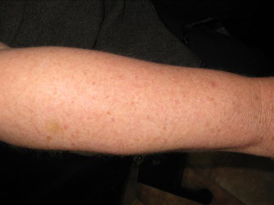 woman's arm after electrolysis