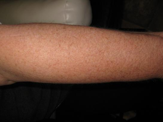 woman's arm before electrolysis